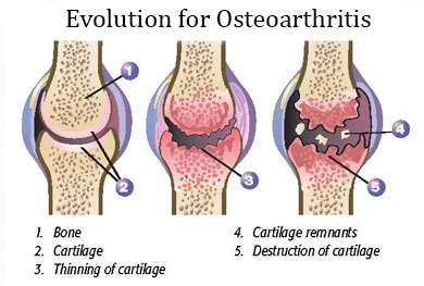 Aromatherapy and Ayurvedic Medicine for Osteoarthritis