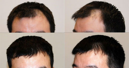 How to Choose the Best Hair Loss Treatment Option